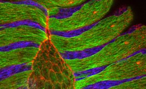 The microscope image of the dorsal closure of a fly embryo shows alternating stripes of epithelial cells with aligned microtubule bundles (green) and epithelial cells treated with a microtubule-destroying drug (blue). Labelled in red is the protein actin that lines the border of cells, particularly the amnioserosa cells occupying the eye-shaped opening.