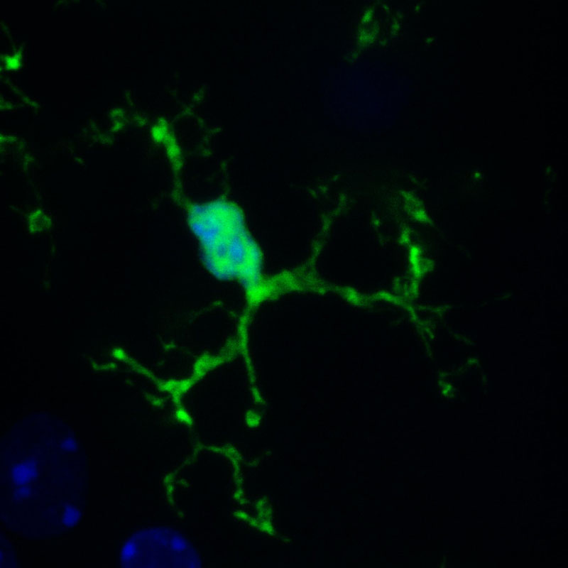 Microglia (green) in a mouse brain. The nuclei of all cells in the brain are labelled blue. Credit: EMBL/ R.Paolicelli