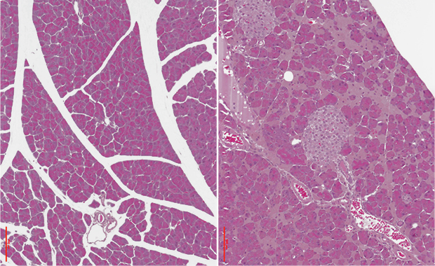 The pancreas of mice suffering from iron overload (right) degenerates