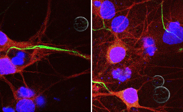 Depending on what receptors they have, axons (green) can be attracted (left) or repelled (right) by netrin (grey). Credit: Lorenzo Finci (Harvard Medical School/Peking University) & Yan Zhang (Peking University)