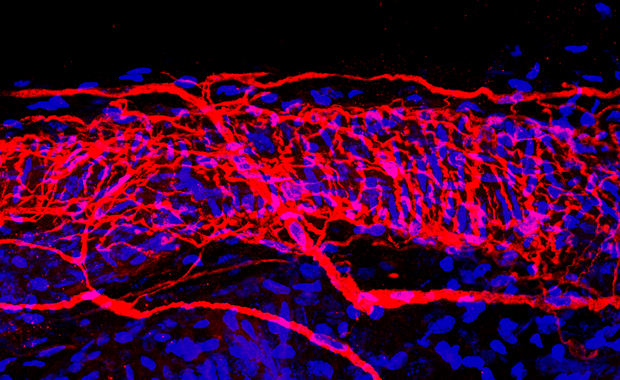 """This is my favorite image – we'd never seen anything like this until we used this technique,"" says Heppenstall. ""It shows that free nerve endings [red] in the skin split into an incredible number of branches."" IMAGE: EMBL/S. MORLEY"