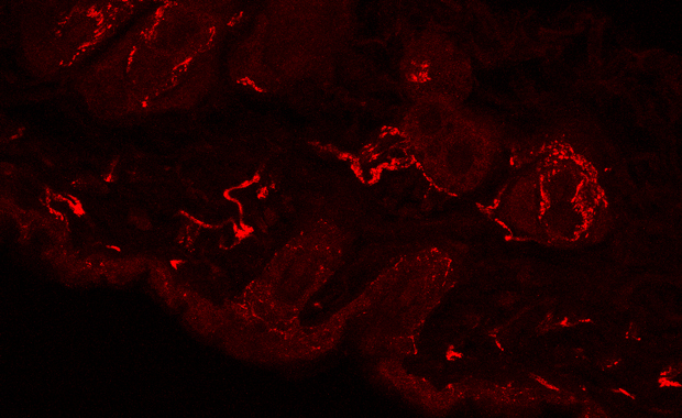 Previous approaches using labels that relied on antibodies had difficulty penetrating the skin. IMAGE: EMBL/R. DHANDAPANI