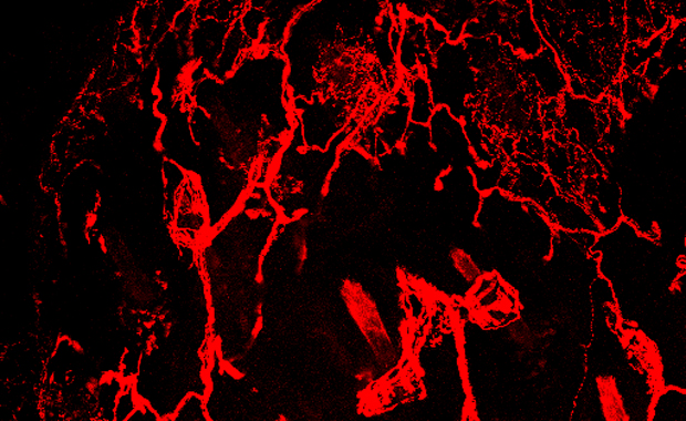 Researchers can now use custom-made artificial labels, obtaining much more detailed images of the skin's nerves. IMAGE: EMBL/F. C. REIS