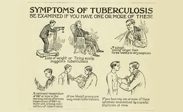 Symptoms of tuberculosis