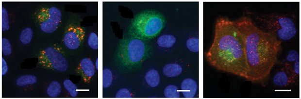 Normal cell (left) and cells with 2 variants of the same gene that cause different effects (middle, right). IMAGE FROM THORMAEHLEN ET AL.