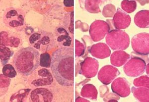 Healthy bone marrow (left) vs. bone marrow of leukaemia patient (right). IMAGE: MEDIZINISCHEN HOCHSCHULE HANNOVER