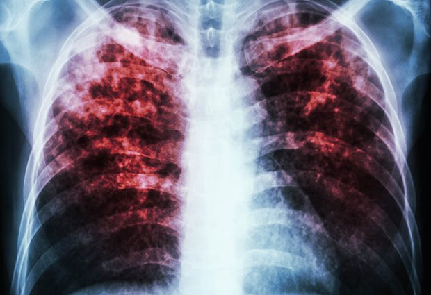 Tuberculosis – caused by Mycobacterium tuberculosis – is a potentially fatal contagious disease that can affect almost any part of the body but is mainly an infection of the lungs