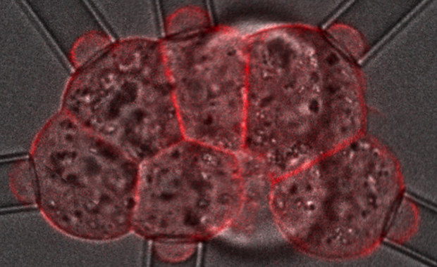 Jean-Léon Maître's research looks to map surface tensions in a developing mouse embryo. IMAGE: EMBL/Jean-Léon Maître