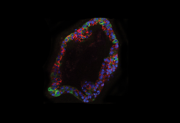 In organoid cultures, mouse residual breast cancer cells have elevated lipid metabolism (green). IMAGE: Jechlinger/EMBL