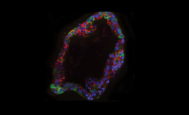In organoid cultures, mouse residual breast cancer cells have elevated lipid metabolism (green). CREDIT: Jechlinger/EMBL