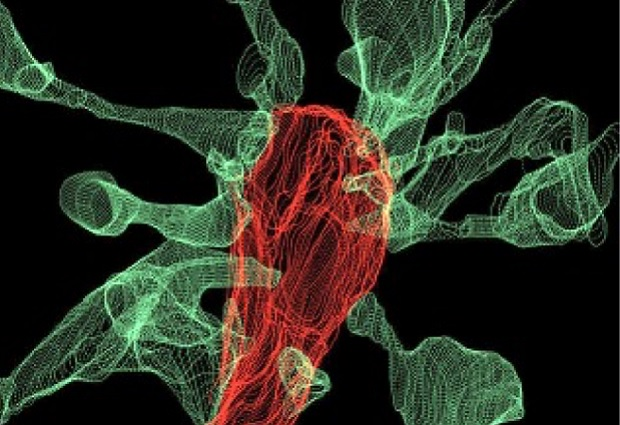Multiple synapse heads send out filopodia (green) converging on one microglia (red), as seen by focused ion beam scanning electron microscopy (FIBSEM).