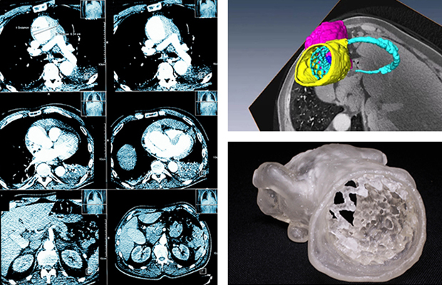 Collage of an MRI scan of a chest, 3D rendering of an anatomical model of a heart emerging from an MRI scan and a 3D printed anatomical model of a heart