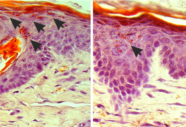 Mouse skin samples of the rare genetic skin disease amyloidosis, before light treatment (left) and after treatment (right). The arrows indicate aggregates of debris, which cause the skin to become rough and uncomfortable. Upon treatment these aggregates are reduced, allowing the skin to heal. IMAGES: Paul Heppenstall and Linda Nocchi / EMBL