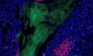 Leukaemia stem cells are located in a patient's bone marrow (shown here in blue) in the so-called stem cell niche. The green structure is the bone itself. Credit: Dr. Raphael Lutz, Haas Lab