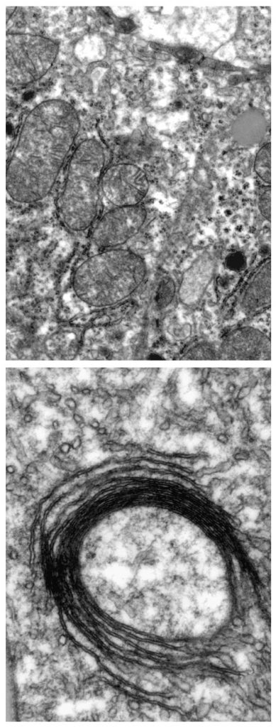 These electron microscopy images show mitochondria in a normal cell (top) and a close-up of a mitochondrion with structural defects, in a cell that cannot produce IRPs (bottom).