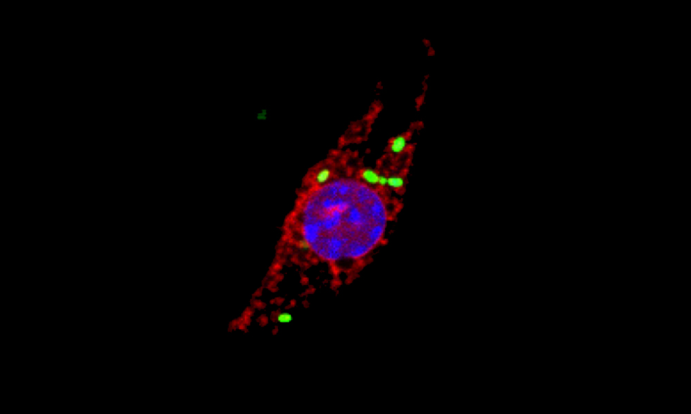 Microscopic image showing a macrophage that has been infected with Salmonella (green), causing cellular cathepsins (red) to locate to the nucels (blue).