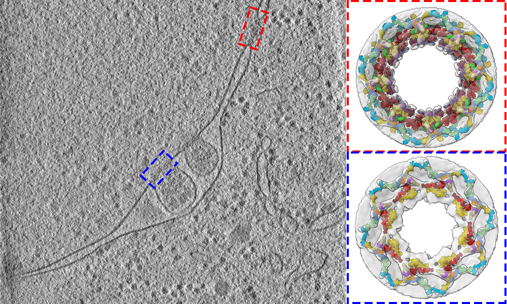 Left: Slice of a cell in grey. Right: Two 3D reconstructions of parts of the slice, showing the internal structure.