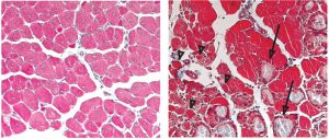 This microscopy image, taken ten days after injury, shows that the muscle fibres of normal mice (left) had re-grown, while in mice which couldn't boost C/EBPβ production (right) there were still many fibres that had not regenerated (arrowheads), and the tissue had a number of scars (arrows).