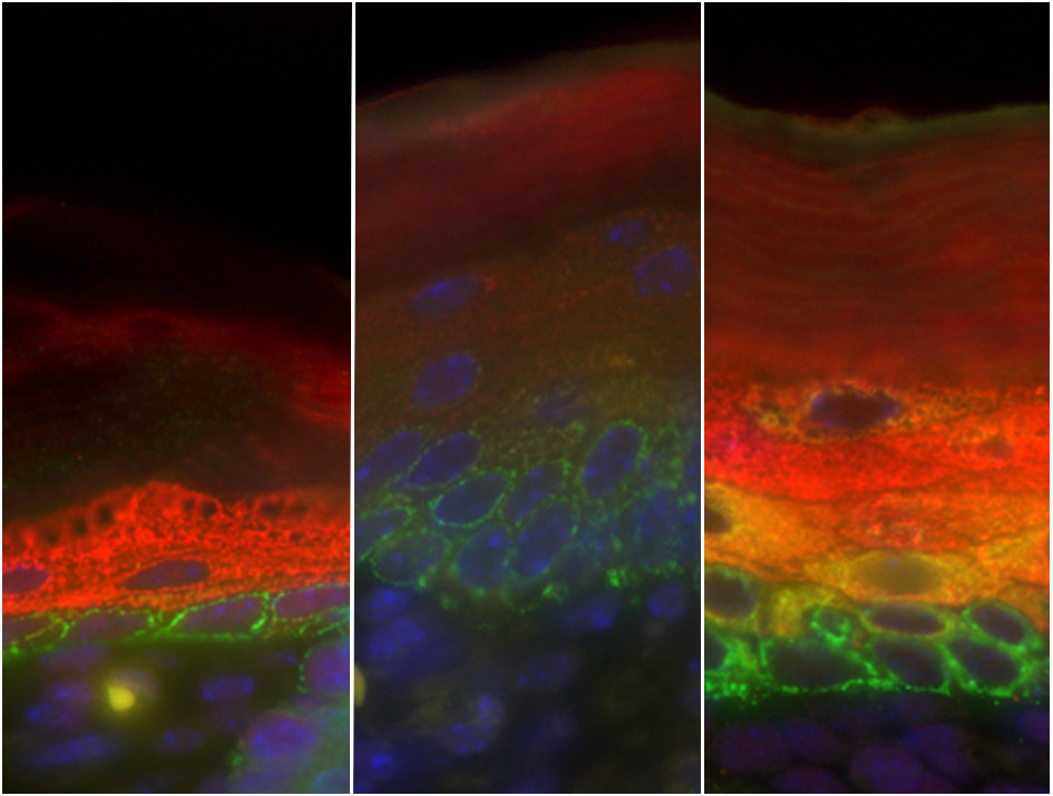 In normal skin (left), the stem cells at the base, shown in green, differentiate into skin cells, shown in red. In mice whose skin has neither C/EBPα nor C/EBPβ (middle), this differentiation is blocked: green-labeled stem cells appear in upper layers of skin, and there are no differentiated skin cells (no red staining). This also happens at the initial stages of basal cell carcinomas. In skin where C/EBPα is present but has lost its capacity to interact with E2F, a molecule that regulates the cell cycle (right), skin cells start differentiating abnormally, before they have properly exited the stem cell 'program' (yellow/orange). This is similar to what is observed in the initial stages of squamous cell carcinomas, a more aggressive and invasive skin tumour.