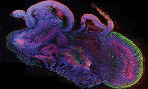 Microscopy image of cerebral organoid cross section