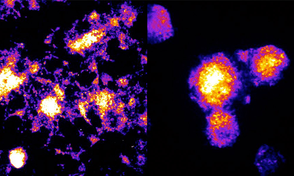 Composite image of mouse cells and human cells showing different levels of luminescence, indicated as different colours.