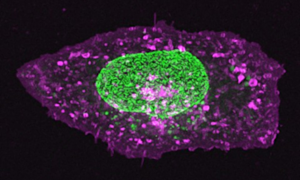 Microscopic image of a cell, nucleus visible in bright green, cell membrane stained with a purple dye against black background.
