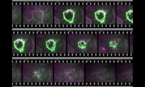 A filmstrip showing the healing process of a wound on cellular level.