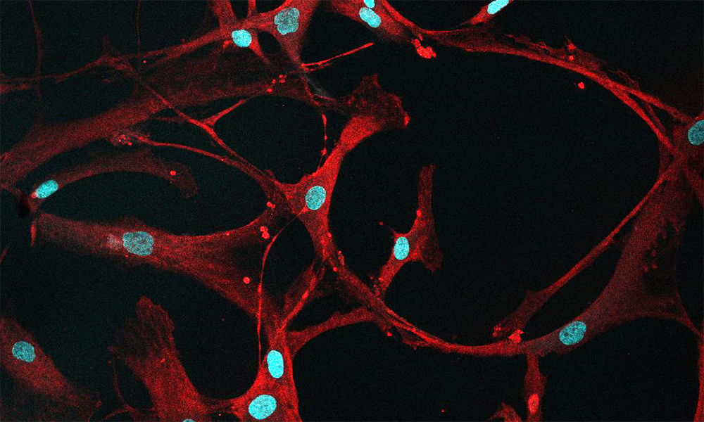 Red loops on a black background are dotted with bright red flecks and pale blue ovals as part of a confocal microscope image of bone marrow cells.