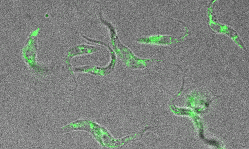 Curly-shaped trypanosomes, grey with bright specks of green fluorescent protein, against a grey background.