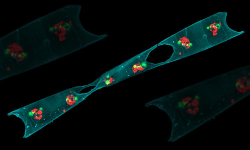 Oblong shape with two holes and coloured dots inside, representing phytoplankton cells and nitrogen-fixing bacteria